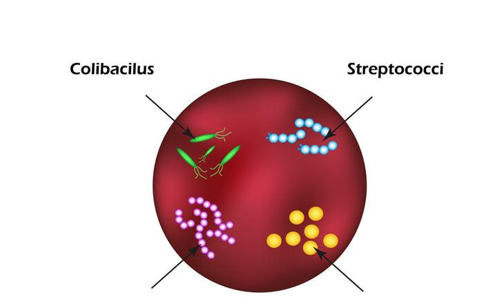 bacteria causing sepsis
