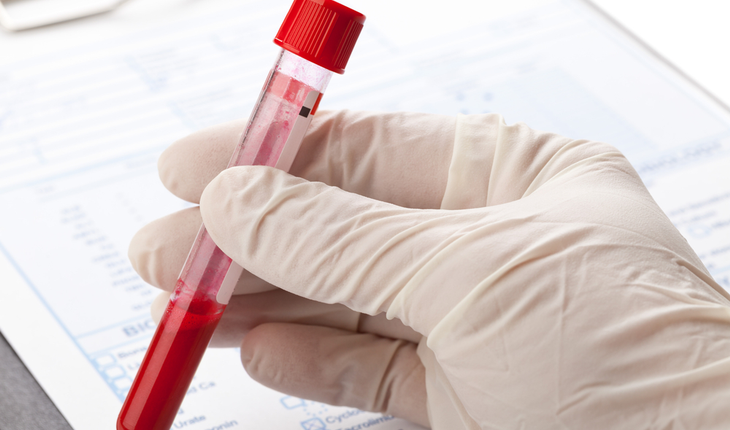 blood-sample-liquid-biopsy