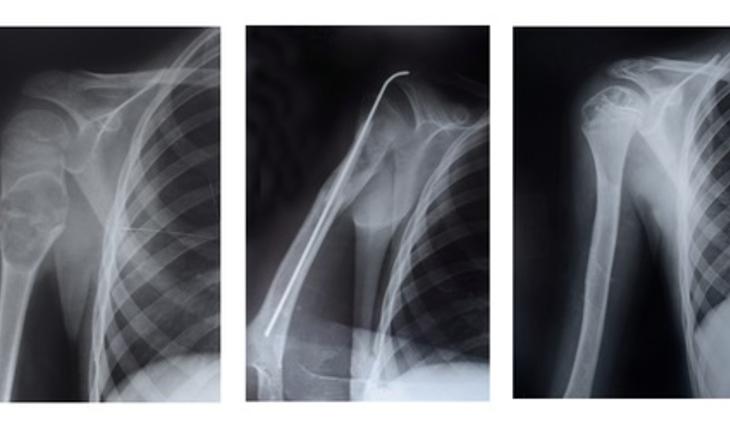 bone-loss.jpg