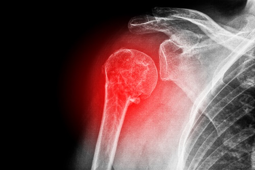 bone-osteoporosis.jpg