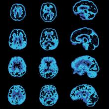 brain-PET-Scan.jpg