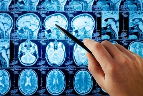 brain-images.jpg