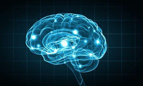 brain scan view