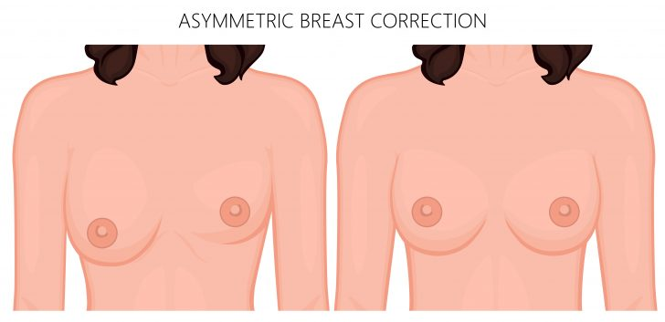 breast-assymetry-correction