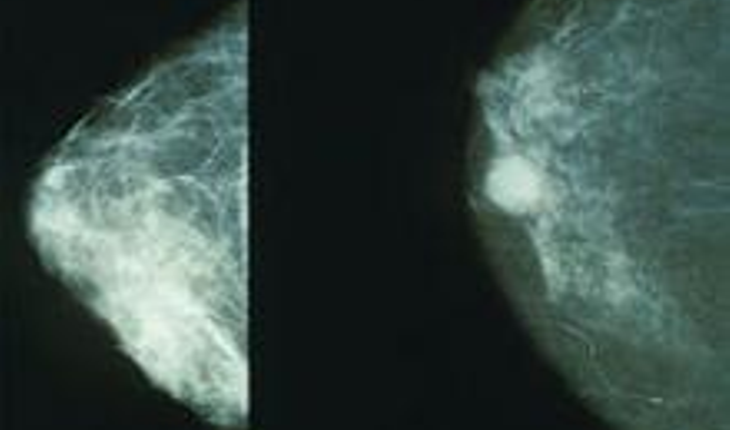 breast-mammograms.jpg