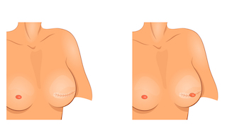 breast-reconstruction-with-nipple