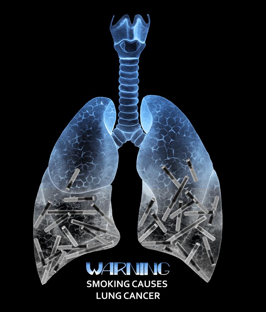 cigarette pictorial warning
