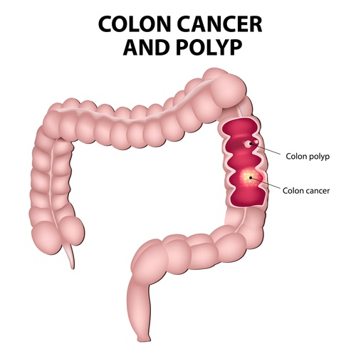 colon-cancer.jpg