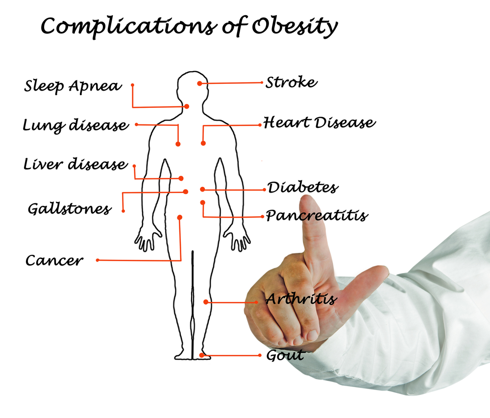 complications of obesity.jpg