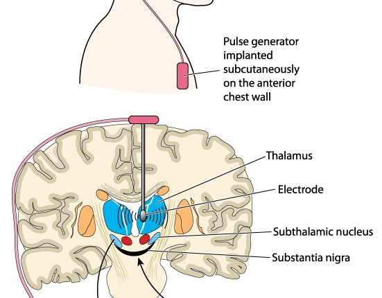 deepbrain stimulation