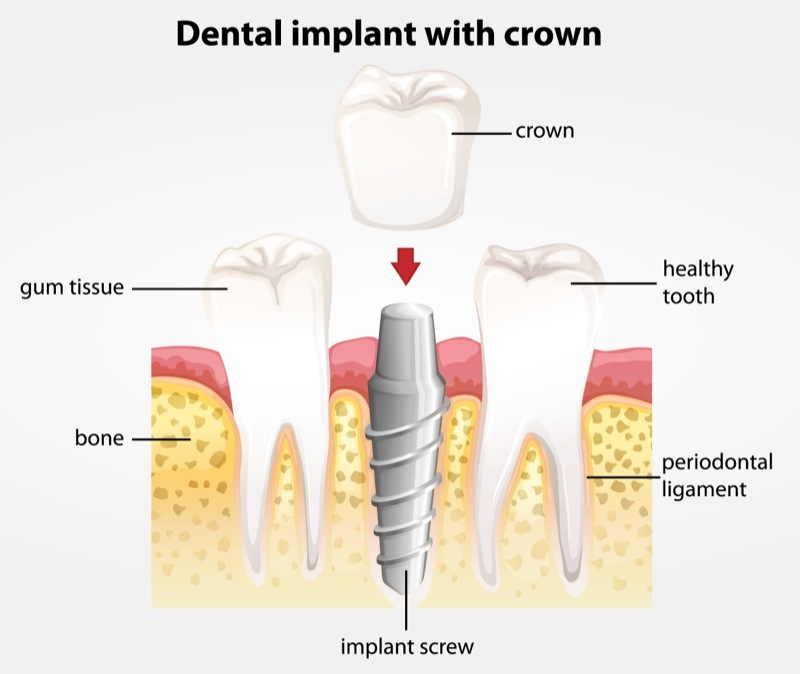 dental implant with crown.jpg
