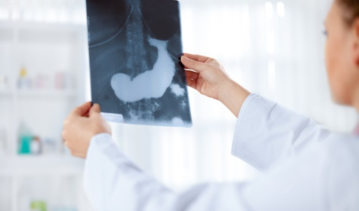 doctor with x ray of pancreas