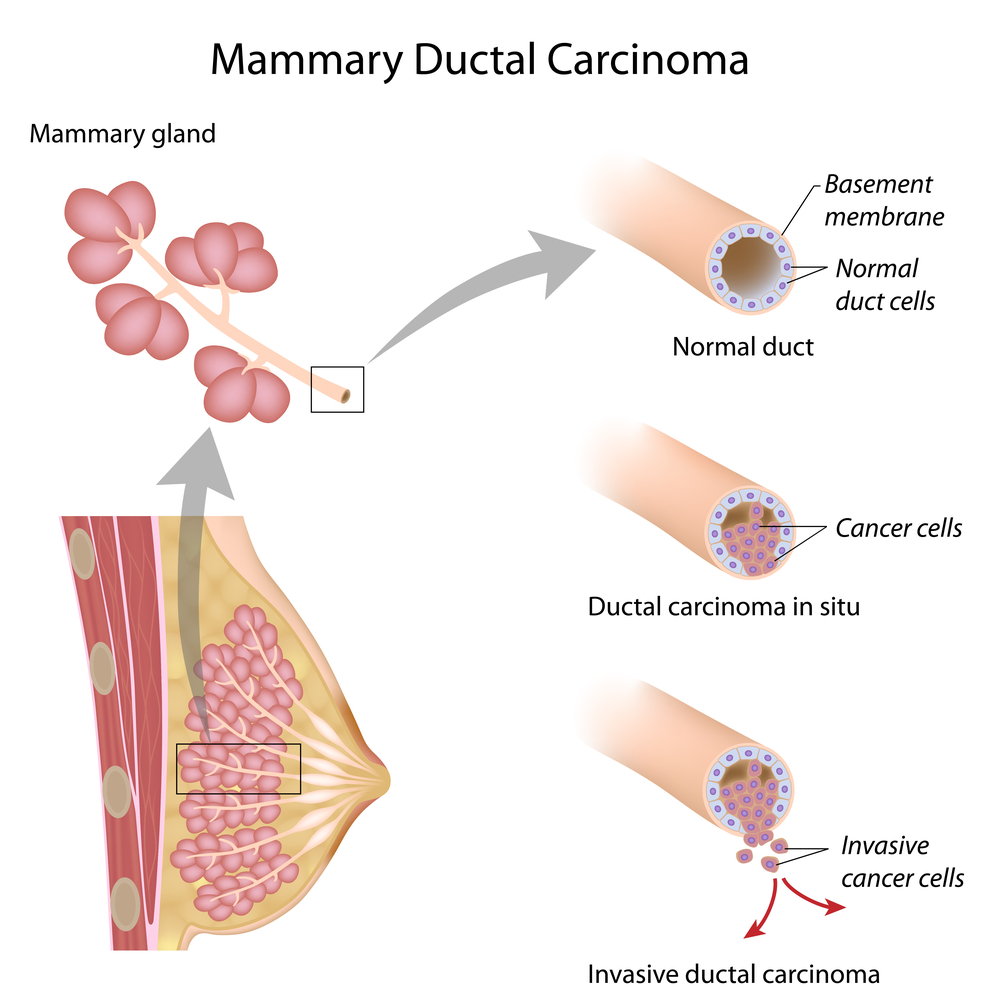 Image result for Ductal Carcinoma