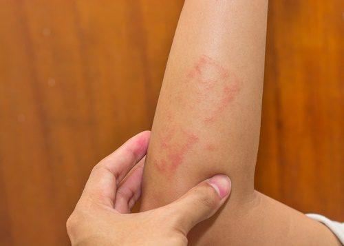 eczema itchy skin