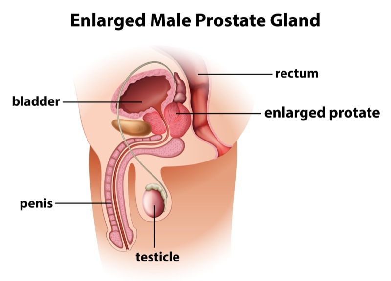 enlarged prostate.jpg