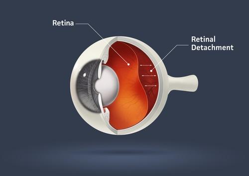 eye-illness