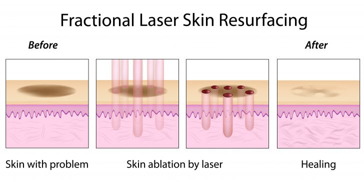 fractional-laser-tx