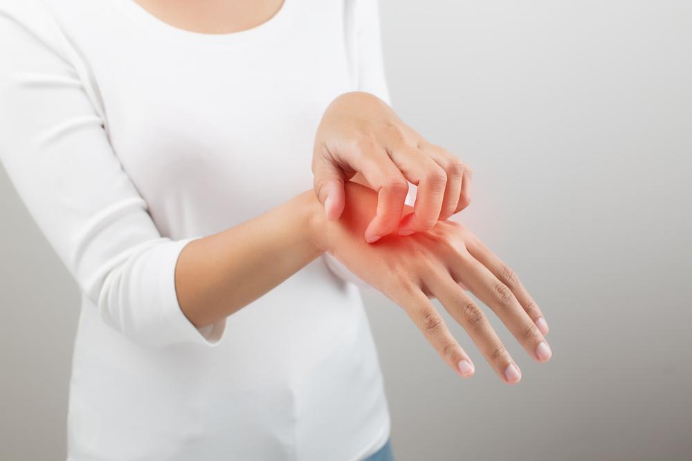 hand rash