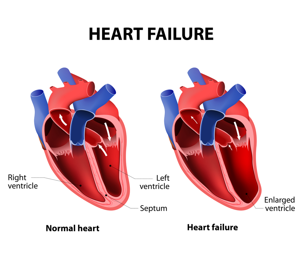 heart-failure