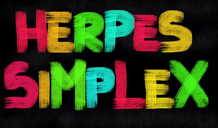 herpes-simplex