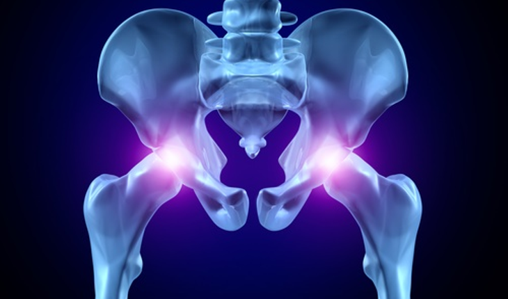 hip-replacement-2.jpg
