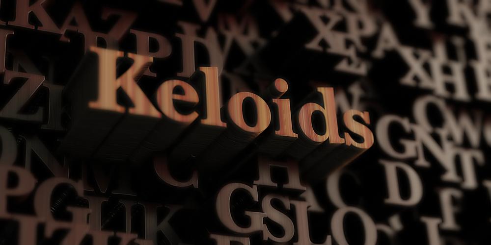 keloids