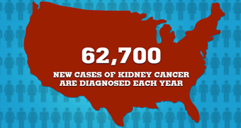 How Common is Kidney Cancer?