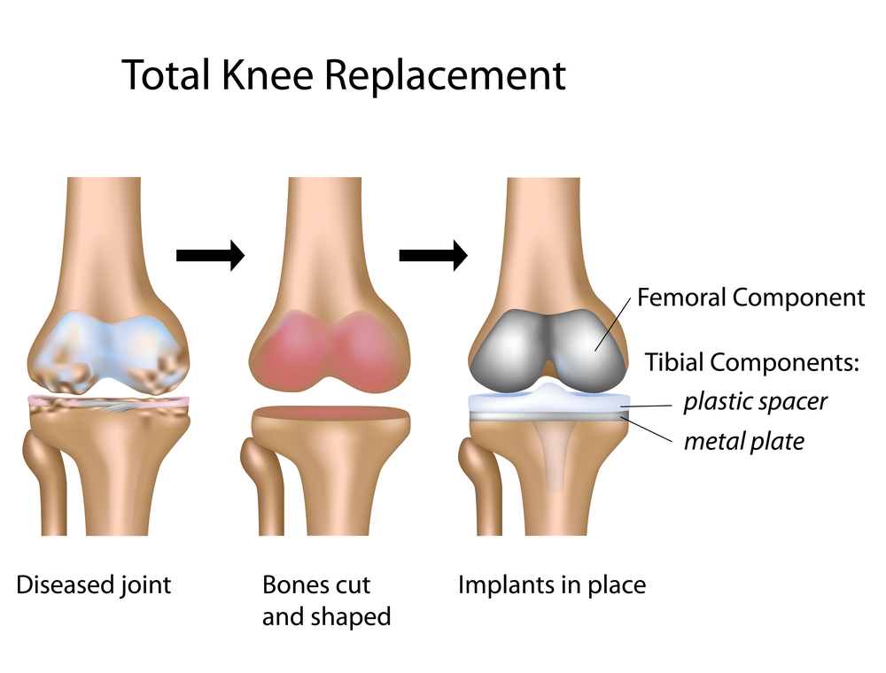 knee replacement.jpg