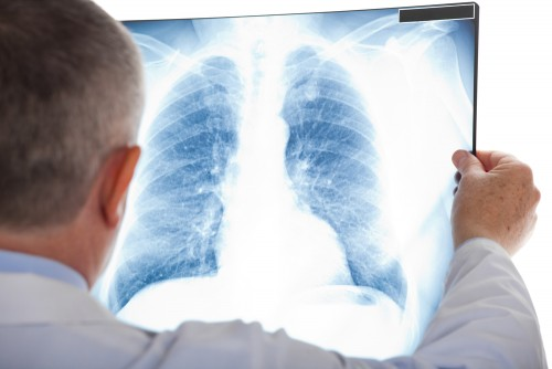 lung radiography