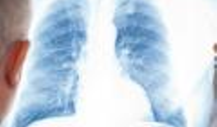 lung-x-ray2
