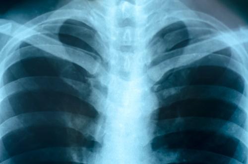 lung-xray.jpg