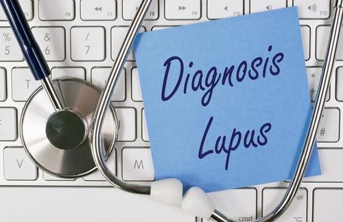 lupus-diagnosis