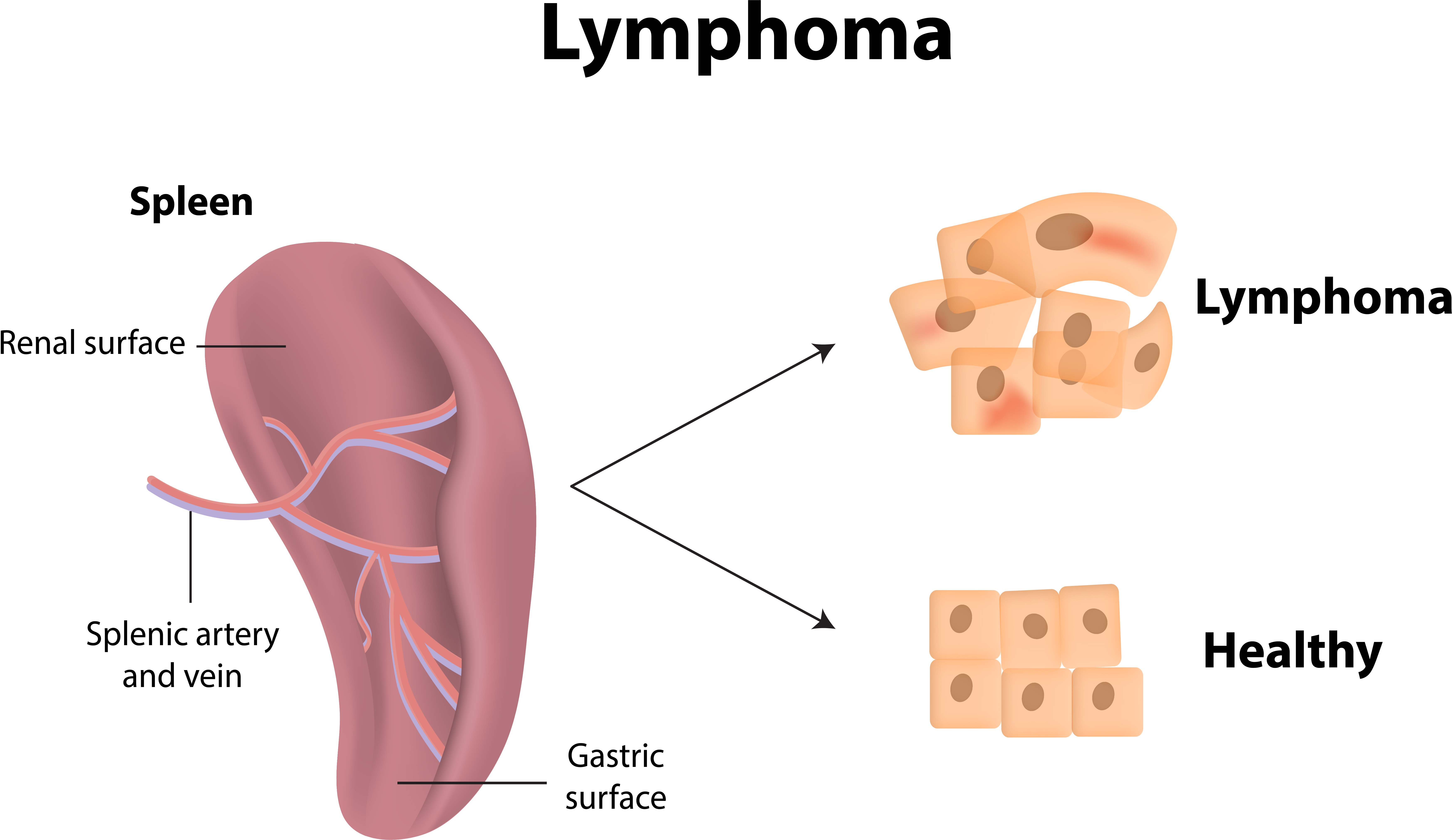 lymphoma.jpg