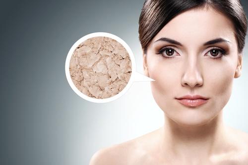 mature-woman-dry-skin