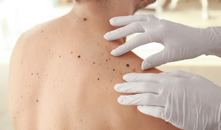 melanoma exam