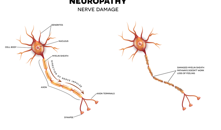 nerve damage, neuropathy