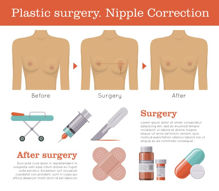 nipple-reconstruction
