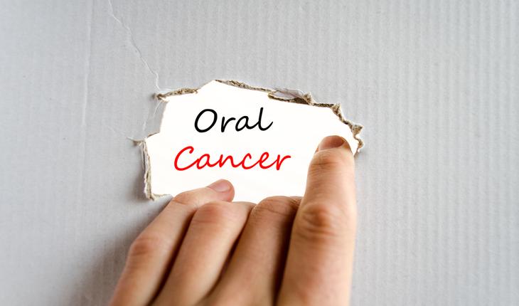 oral-cancer
