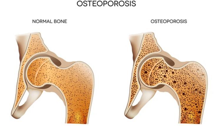 osteoporosis-bone.jpg