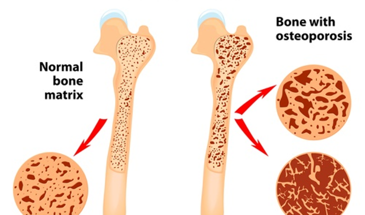 osteporosis.jpg