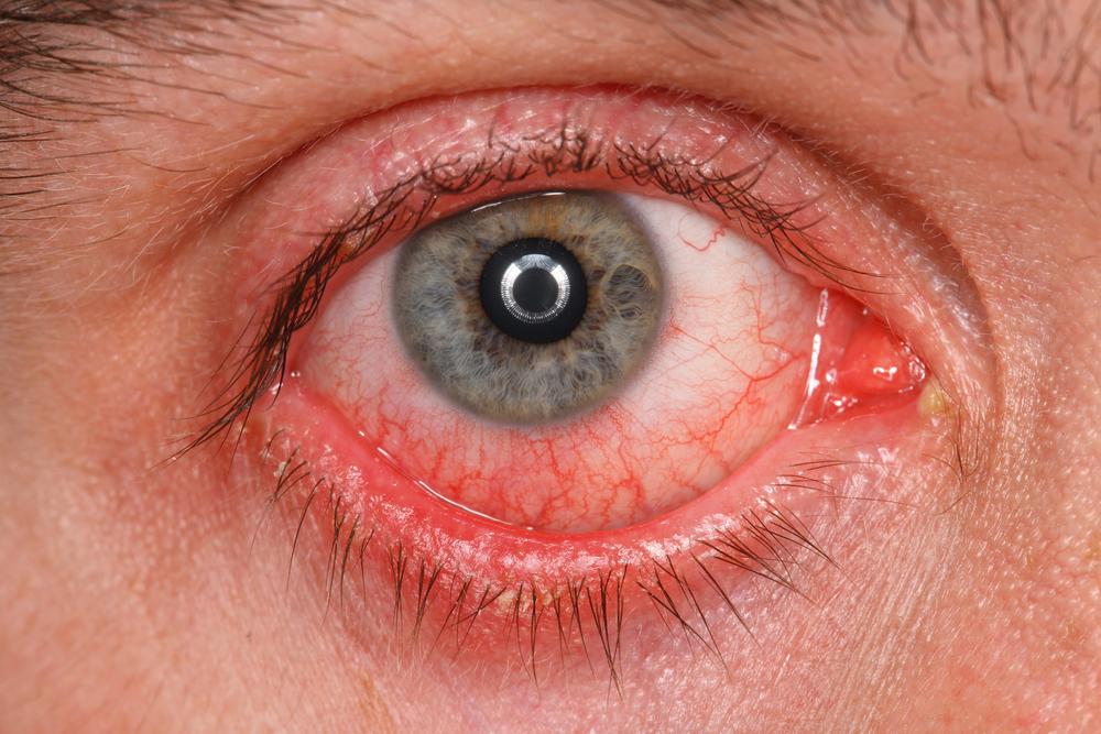 Cat Allergy Bloodshot Eyes