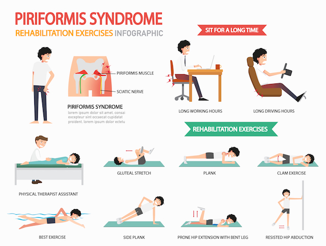 piriformis-syndrome