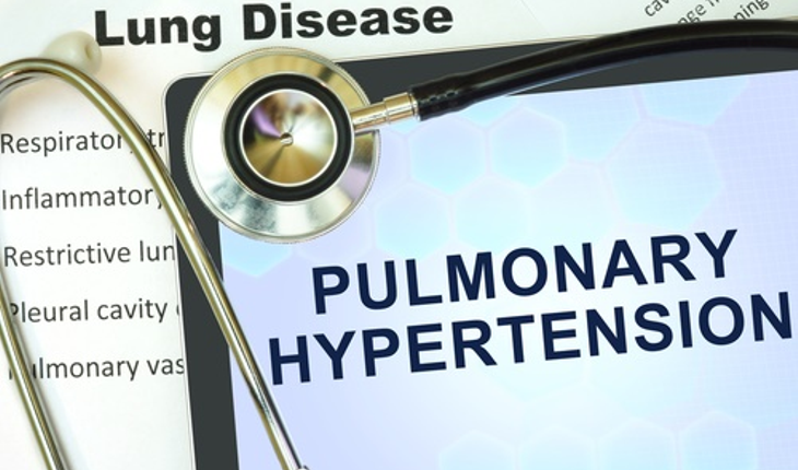pulmonary hypertension sign