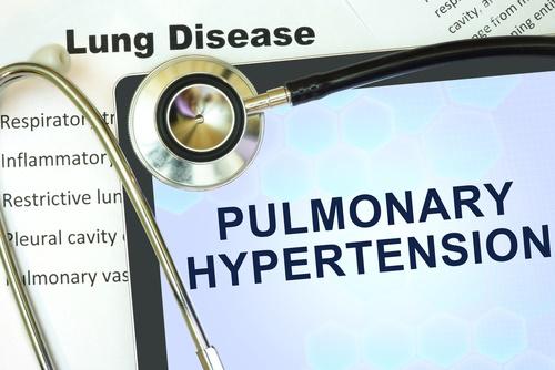 pulmonary hypertension sign