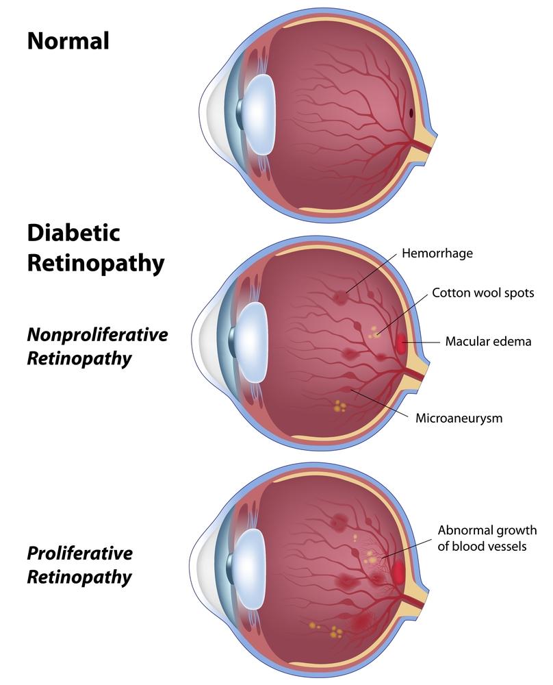 retinopathy.jpg