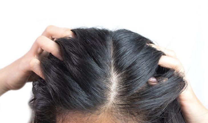 scalp-problem