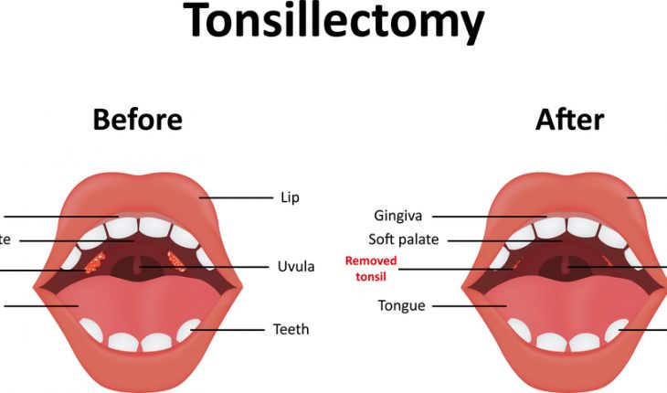tonsilectomy diagram
