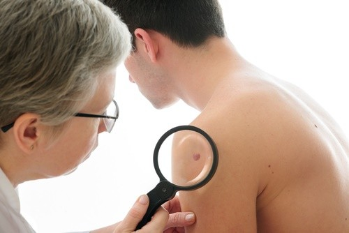 skin exam man