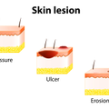 skin lesion