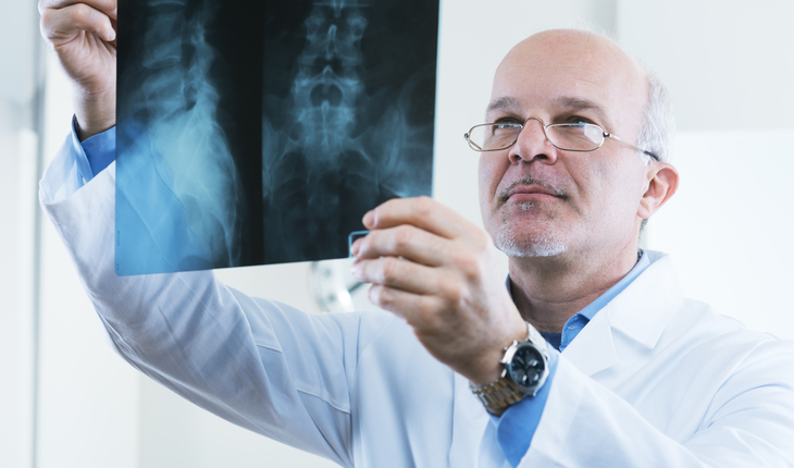 spine-x-ray